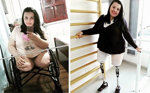 Isamara perdeu as pernas após um acidente. Ela está em período de reabilitação para uso das próteses. Fotos: Arquivo pessoal/Divulgação/Notisul.