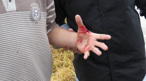Político ficou ferido após ação de criminosos, que ainda estão à solta   - Foto:Mariane Rodrigues/Jornal Volta Grande/Divulgação/Notisul