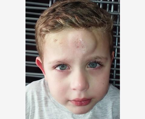Os hematomas ocorrem devido às crises que o pequeno Brayan sofre. - Foto: Arquivo da família/Divulgação/Notisul.