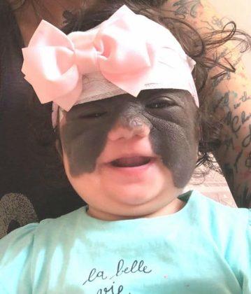 A bebê com o curativo após a primeira cirurgia