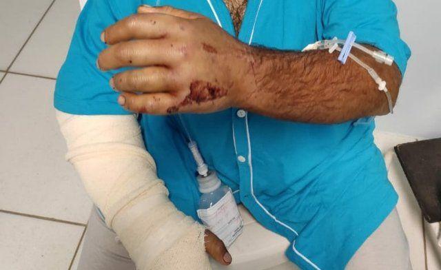 Foto de homem com a mão direita enfaixada e ferimentos na mãe esquerda.