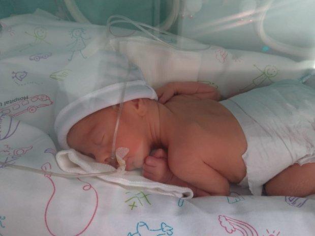 #Pracegover Foto: na imagem há a foto de um bebê prematuro