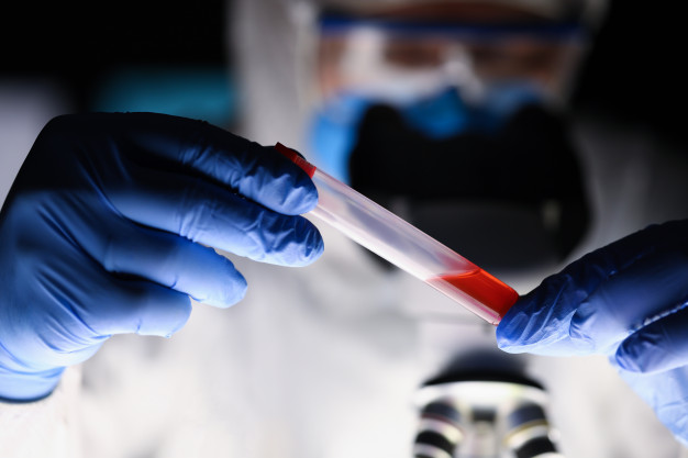 #Pracegover Na foto, um profissional segura um tudo com sangue para exame
