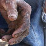 #Pracegover Foto: na imagem há as mãos e a perna de uma pessoa
