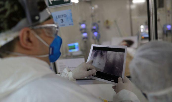 #pracegover Na foto, médico da UTI examina uma radiografia de tórax de um paciente com Covid-19