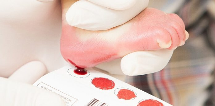 #Pracegover Na foto, recém-nascido com sangue nos pés durante exame