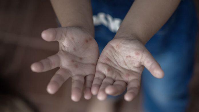 #Pracegover foto: na imagem há duas mãos com bolinhas vermelhas